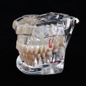 1PCS Dental Implant Disease Teeth Model with Restoration BridgeTooth Dentist for Medical Science Teaching NEW - intl - 2