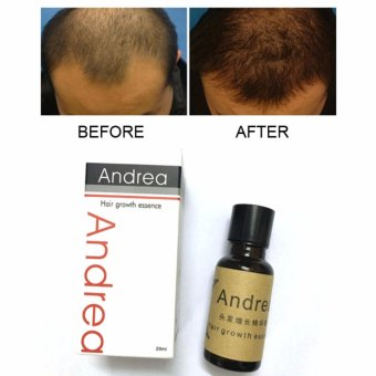 Authentic! ANDREA Hair Growth Essence Hair Grower Hair Conditioner Essence Hair Loss Treatment for Men and Women 20ML
