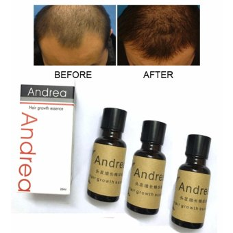 Authentic! Set of 3 ANDREA Hair Growth Essence Hair Grower Hair Conditioner Essence Hair Loss Treatment for Men and Women 20ML