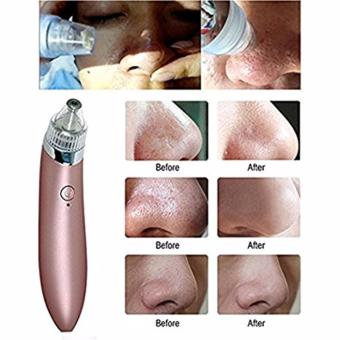 Blackhead Remover,Bigaint Rechargeable Electronic Acne RemoverFacial Pore Cleaner Utilizes Pore Vacuum Extraction(ROSE GOLD) - 2