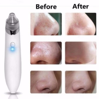 Electric Facial Pore Cleanser BlackHead Cleaner Acne Remover Tool -intl (White)