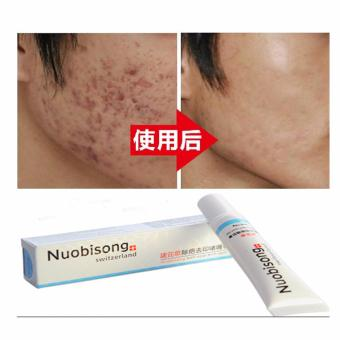 HB Nuobisong Whitening Face Cream (Stretch Mark Acne Scar Whitening Removal Cream)