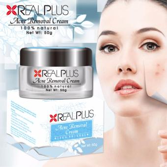 Real Plus Acne Removal Cream 50g per piece Price Philippines