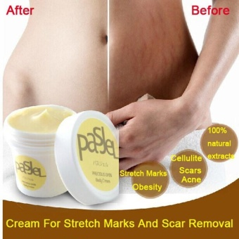 Stretch Marks Repair Cream Pasjel Thailand Maternity Products Whitening - intl Price Philippines