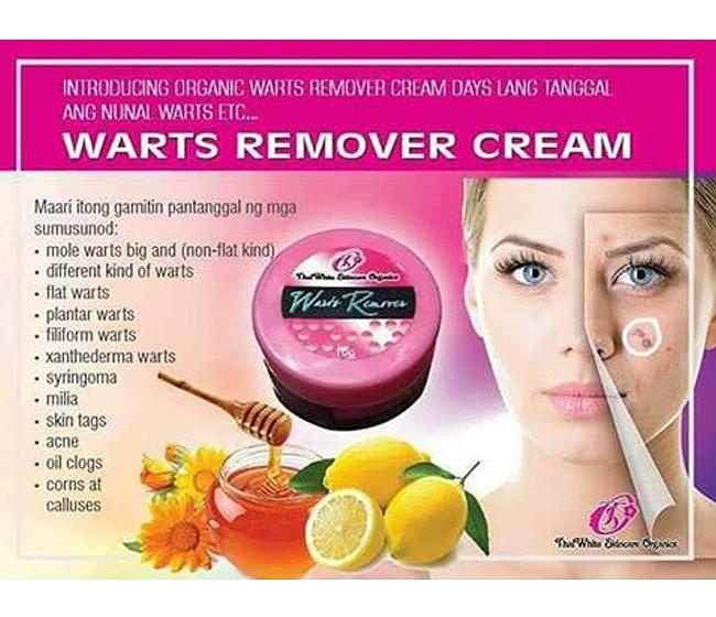 face warts removal cream