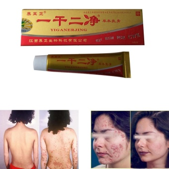 YiGanErJing Natural Herbal Herbal Cream for Psoriasis Eczema AcneItch - intl Price Philippines
